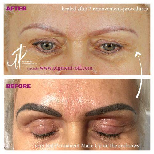 First Class Beauty Academy by Julia Herb - Permanent Make-up Entfernung
